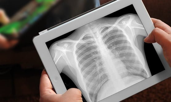 Foundation Trust Checking And Updating X Rays After Data