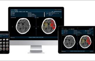 Brainomix on devices
