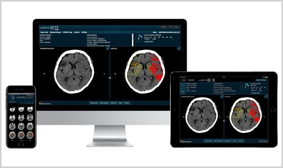 Northwick Park Hospital adopts new software to help identify stroke victims