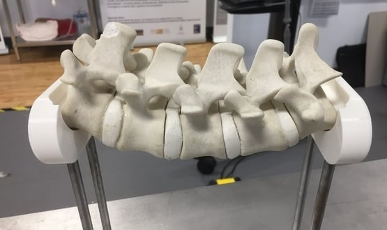 Spinal Robot (2)